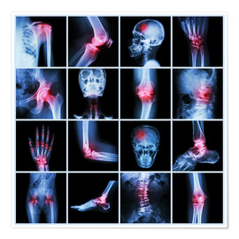 Premium poster  Human joint, arthritis and stroke